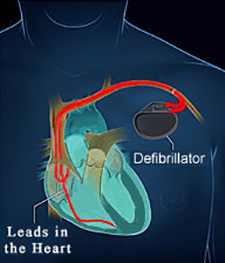 Defibrillator (ICD) Placement